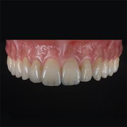 3M Lava™ Esthetic Fluorescent FC Zirconia - Jensen Dental