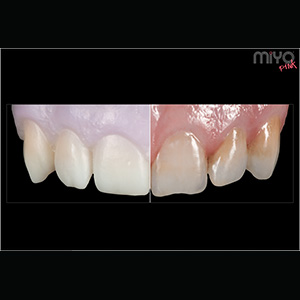 Create natural teeth and tissue with MiYO Color and Structure